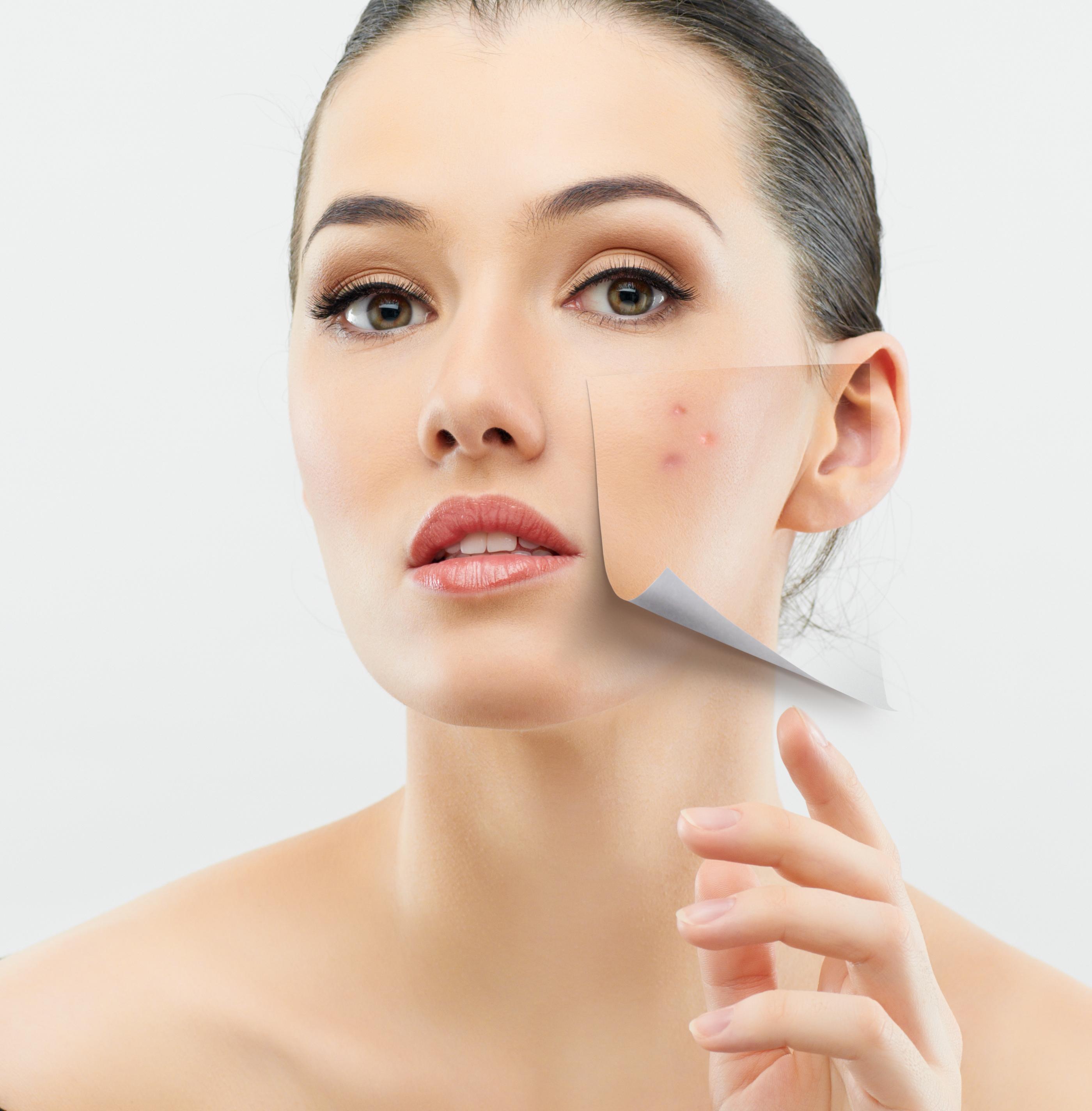 Лечение жирной кожи в домашних условиях