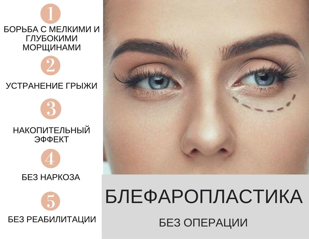 Блефаропластика Екатеринбург