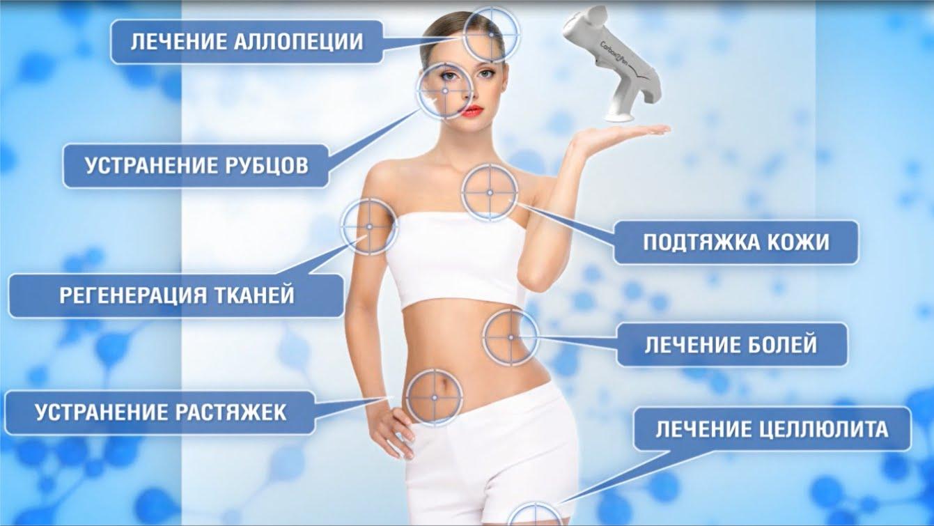 Карбокситерапия лица, спины